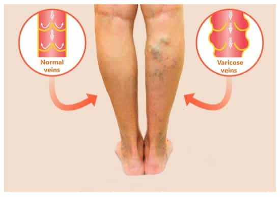 best treatment for varicose veins