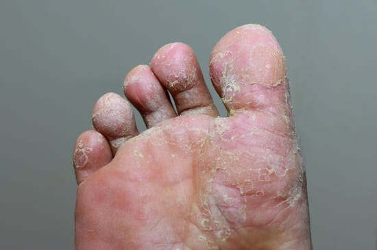essential oils recipe for athlete's foot