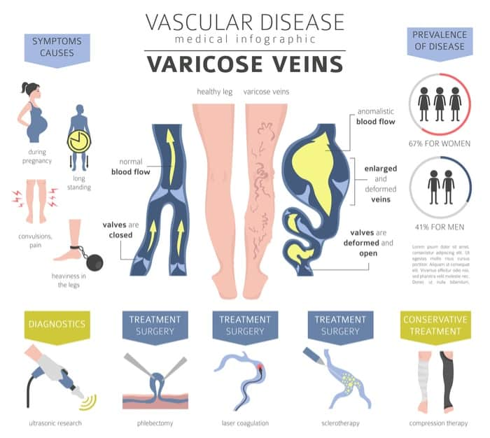 how to remove varicose veins at home