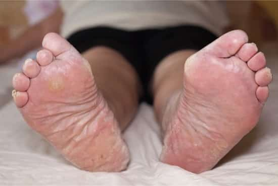 peeling skin between toes no itching