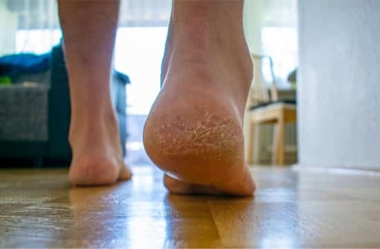 split skin between toes not athlete's foot