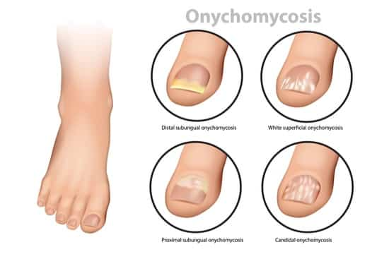 What happens to untreated toenail fungus?