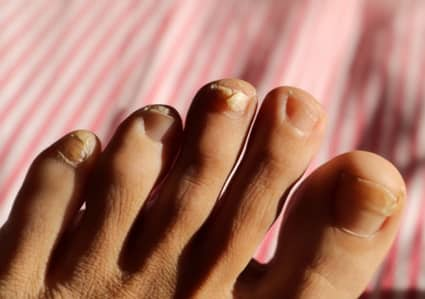 thick yellow toenail causes